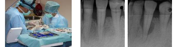 Tratamiento quirúrgico de la periodontitis